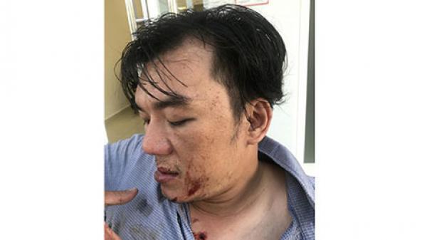 Du khách Quảng Bình tố bị nhân viên nhà hàng ở Đà Nẵng đánh nhập viện