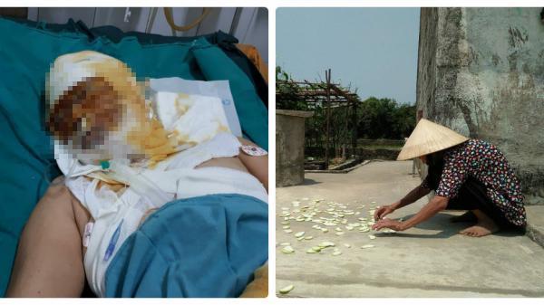 Quảng Bình: Con gái bỏng chín mặt, mẹ già ở nhà còm cõi mong tin
