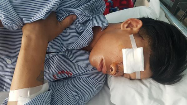 Thanh niên Quảng Bình bị chém đứt phần mũi 9X do mâu thuẫn ở quán nước