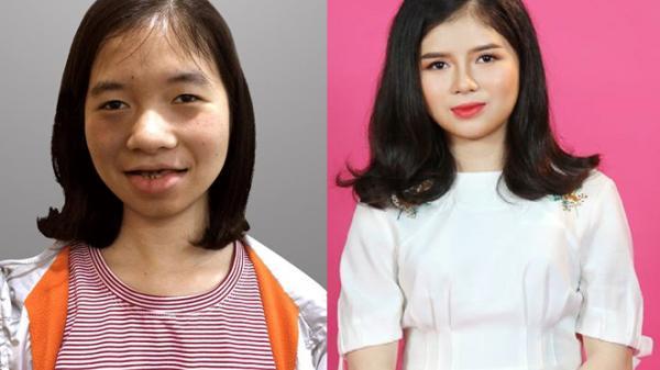 Cô gái quê Quảng Bình bị chê là 'ma cà rồng' lột xác sau 5 lần phẫu thuật thẩm mỹ