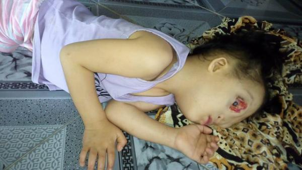Xót xa hoàn cảnh người mẹ trẻ ở Quảng Bình khẩn cầu xin cả thế giới giúp con gái mình có được khuôn mặt lành lặn