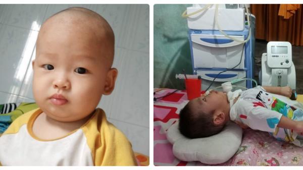 Xót xa bé trai 1 tuổi ở Quảng Bình gồng cứng người vì di chứng bại não do bị ngã