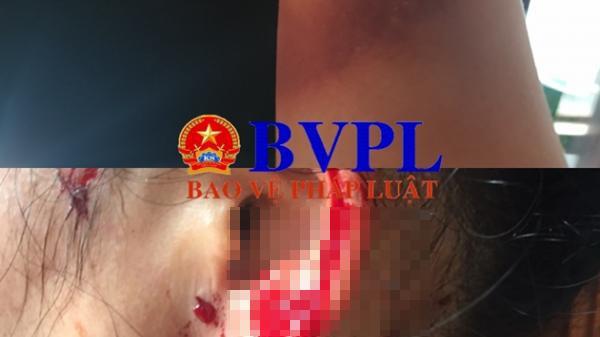 Hai vợ chồng nữ doanh nhân ở Quảng Bình bị giang hồ dùng s úng tr uy sát