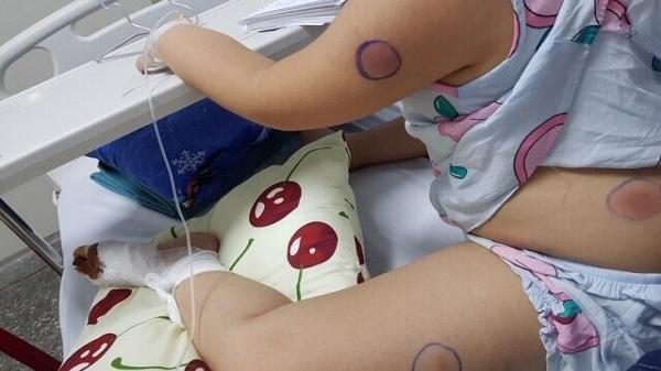 """Phát hiện 1 bé gái ở Quảng Bình nhiễm vi khuẩn """"ăn thịt người"""" sau khi bị gà mổ vào chân"""