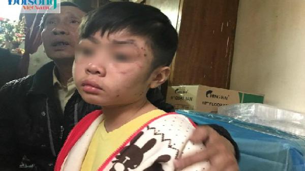 """Bé trai 10 tuổi bị bố ruột và mẹ kế bạo hành: """"2 năm rồi cháu mới được bát phở ngon như vậy"""""""