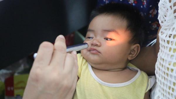 Ngày 9 đến 20/12 nhận đăng ký mổ mắt miễn phí cho trẻ em miền Trung