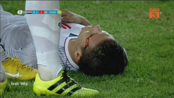 Xót xa hình ảnh Quảng Hải đổ máu, kiệt sức, nằm vật trên sân cỏ ở những phút cuối hiệp phụ thứ hai
