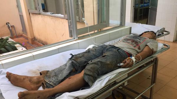 Gia Lai: 9X bị thương nặng khi dùng th uốc n ổ đánh cá