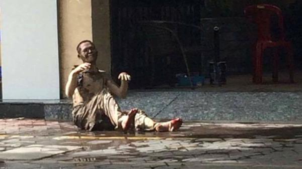 Người đàn ông 39 tuổi tự thiêu trên vỉa hè