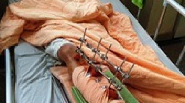 Đắk Lắk: Lộ diện 2 côn đồ chém lìa chân một thanh niên vì cho rằng chửi bố nuôi