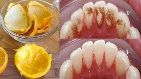 Răng ố vàng, đầy mảng bám trở nên trắng bóc như bọc sứ trong tích tắc nhờ hỗn hợp rẻ tiền này