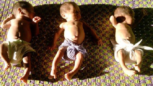 Trà Bồng (Quảng Ngãi): Bác sĩ khuyên bỏ bớt thai, vợ chồng nghèo quyết giữ lại bộ ba thiên thần