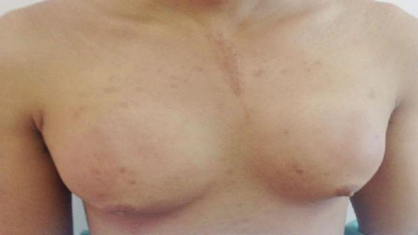 Chàng trai bơm silicon để ngực to như phụ nữ