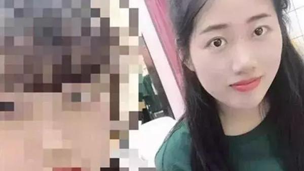 CẢNH BÁO: Nhiệt miệng kéo dài, cô gái 24 tuổi không ngờ bị u.ng th.ư m.áu