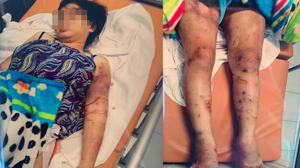 Thông tin sốc vụ thai phụ 18 tuổi bị gi.am, tr.a t.ấn khiến thai nhi t.ử v.ong
