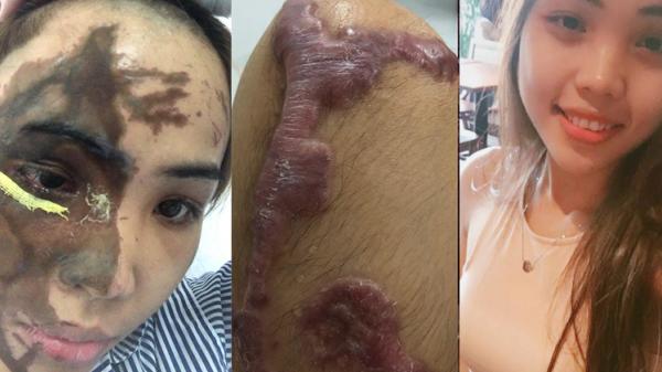 Ở phòng cấp cứu, bố chồng cô gái bị tạt axit vào thăm gây phẫn nộ: 'Đã sờ thử axit, không vấn đề gì, không bị gì cả!'