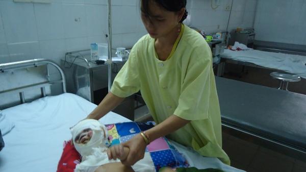 Nghẹn lòng bé trai vùng cao 1 tuổi bỏng nặng cần được cứu giúp