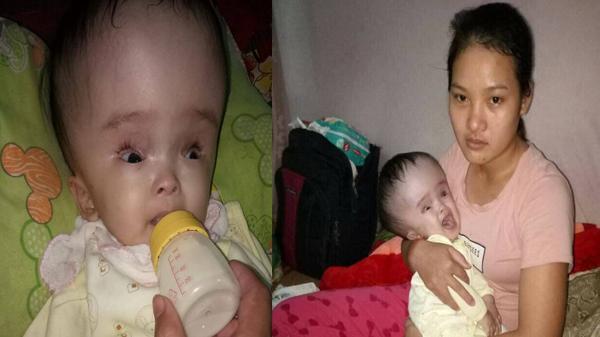 """Nỗi lòng người mẹ có con bị não úng thủy: """"Để cứu con, mẹ sẵn sàng lạy cả thế giới"""""""