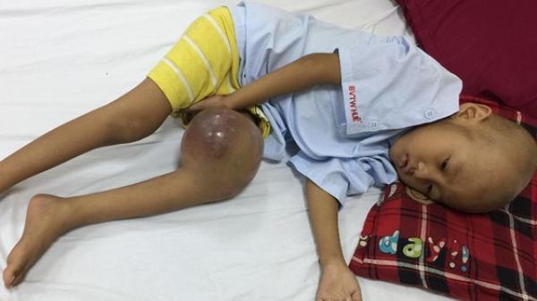 Bé trai ở Triệu Phong cần sự giúp đỡ để phẫu thuật