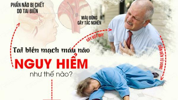 Chuyên gia hướng dẫn 3 cách tự kiểm tra dấu hiệu đ.ột quỵ não tại nhà