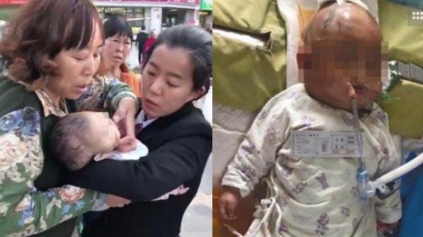 Tai nạn hy hữu: Bị táo rơi từ tầng 24 xuống trúng đầu, bé gái 3 tháng tuổi chấn thương sọ não