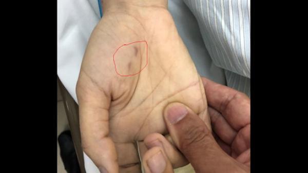 Nữ bác sĩ thú y t.ử v.ong vì bệnh dại sau gần 2 tháng bị chó cắn