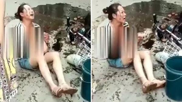 Bà mẹ đau đớn bế con với cơ thể bỏng 50% vì lỗi rất nhiều người dễ mắc phải