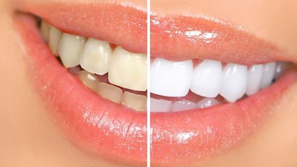Làm trắng răng chỉ với 3 phút tại nhà