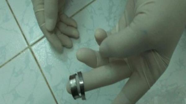 Đồng Nai: Lỡ nghịch dại đeo nhẫn, 'của quý' suýt hoại tử