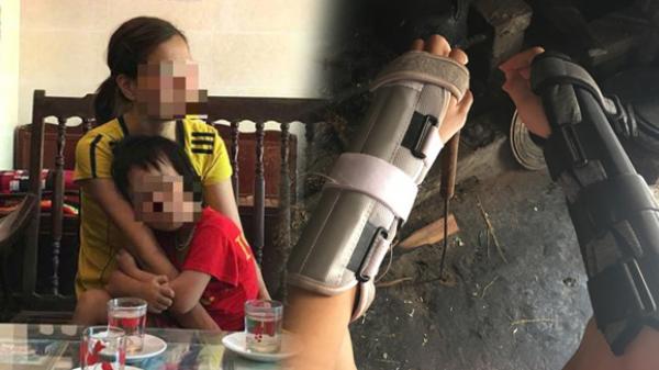 Vụ chồng xích cổ vợ ở Thái Bình: Con trai bị bố bóp rạn xương tay?