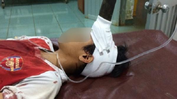 Nghịch dại, bé trai 12 tuổi bị lưỡi dao cắm giữa trán