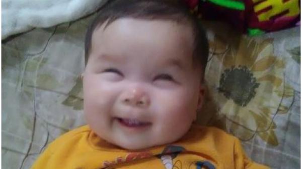 Xót xa bé gái 6 tháng tuổi tại Thái Nguyên sống trong cảnh mù lòa từ khi mới chào đời