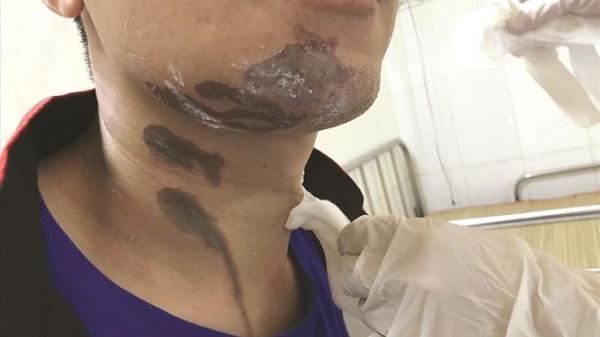 Cảnh báo: Bị bỏng nặng vì dùng bột thông cống