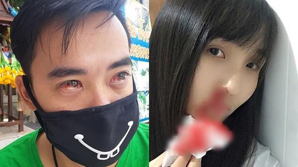 Thái Lan: Ô nhiễm quá nặng tại Bangkok khiến nhiều người dân ho ra máu