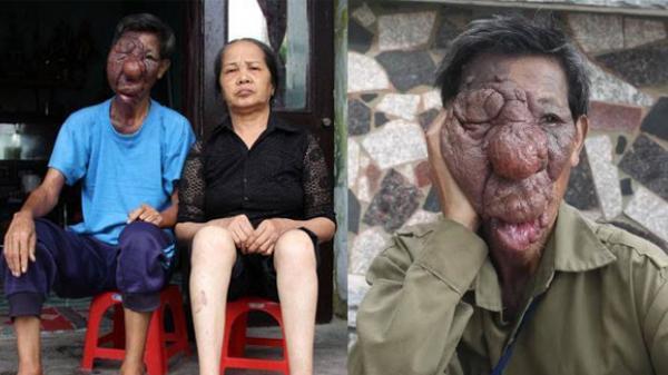 """Quỳnh Phụ (Thái Bình): Chuyện đời buồn tủi của người đàn ông """"mặt quỷ"""""""
