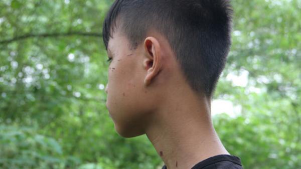 Phú Lương: Bé trai 13 tuổi bị 5 kẻ lạ mặt tấn công khi đi chăn trâu