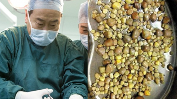 Mổ bụng bệnh nhân, bác sĩ kinh hoàng khi nhìn thấy những thứ này mà nguyên nhân là do ăn quá nhiều đậu phụ