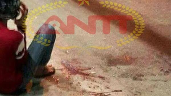 Thái Nguyên: Bị chém lìa 2 ngón tay sau khi xảy ra xô xát