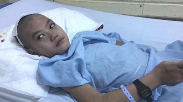 Thái Nguyên: Xót xa bé trai dân tộc Nùng 2 lần phẫu thuật tim, 3 lần mổ não