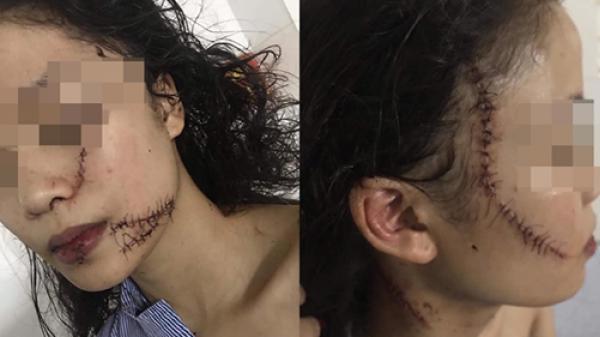 Cô gái 18 tuổi bị 3 bạn cũ la.o vào phòng đ.ánh đ.ập, rạ.ch m.ặt, cổ và tay, phải khâu 60 mũi