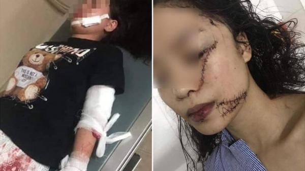 Vụ thiếu nữ 18 tuổi Bắc Ninh bị rạch mặt, khâu 60 mũi: Nạn nhân ra tay trước