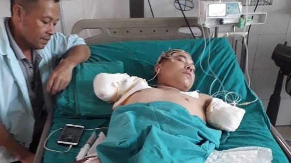 Thái Nguyên: Đang lợp mái tôn, thanh niên bị bỏng điện phải cắt cụt 2 cánh tay