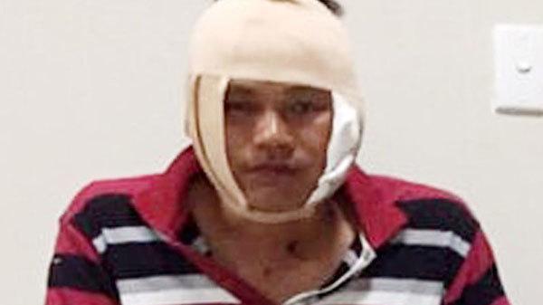 Thanh niên cầm ly bia đánh đại uý công an bị khởi tố