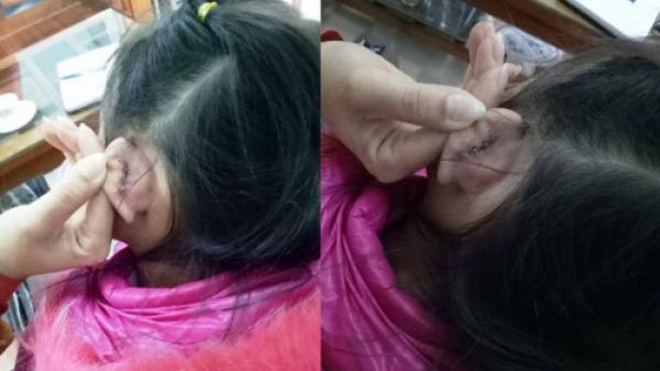 Thanh Hóa: Cô giáo xách đứt tai, học trò phải khâu 4 mũi?