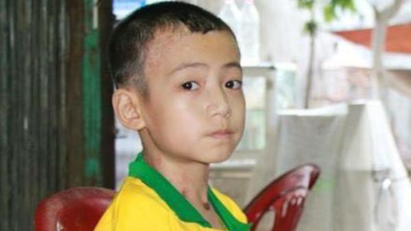 Thanh Hóa: Cháu bé mắc bệnh nan y cái gì cũng thiếu, trừ nước mắt
