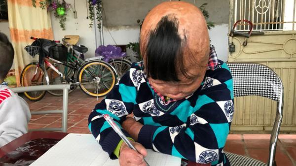 Nghi lực phi thường của cậu bé bị cha tẩm xăng thiêu sống ở Thanh Hóa
