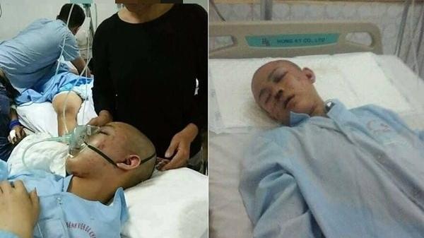 Thanh Hóa: Đáng thương bé trai bị dập não không có tiền để phẫu thuật