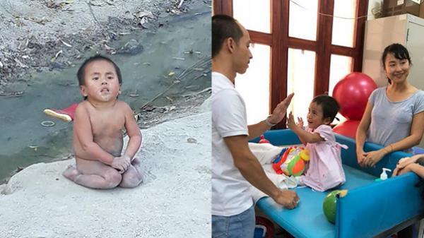 Phép màu có thật: Bé gái khuyết tật không áo quần ở Thanh Hóa ngày nào sắp được đến trường học