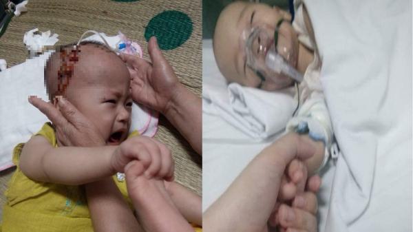 Xót xa hoàn cảnh cháu bé 14 tháng ở Thanh Hóa mắc bệnh hiểm nghèo, trải qua nhiều lần phẫu thuật nhưng gia đình vô cùng khó khăn