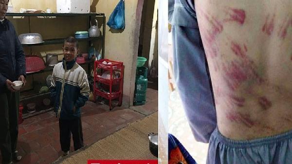 Cuộc sống hiện tại của bé trai 10 tuổi bị sư thầy đánh bầm tím ở Thanh Hóa giờ ra sao?